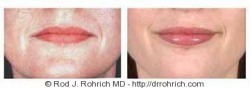 Lip Augmentation: Fat Injections