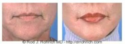 Lip Augmentation: Alloderm Implants