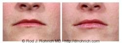 Lip Augmentation: Restylane