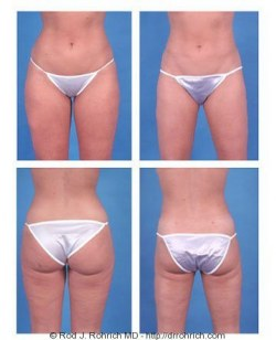 Liposuction: Thighs and Knees