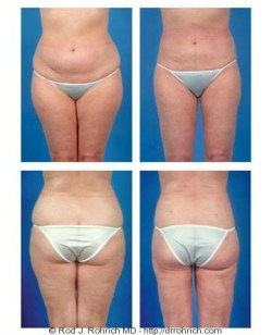 Liposuction: Flanks and Thighs
