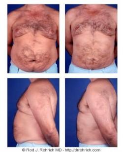 Liposuction: Flanks, Back, Chest, Abdomen