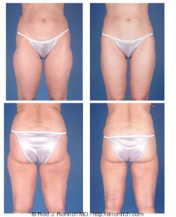 Liposuction: Flanks, Thighs, and Knees