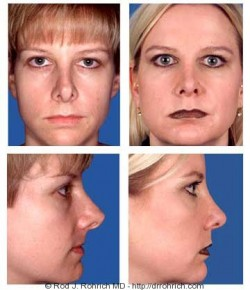 Secondary Rhinoplasty: Overprojected Tip Correction