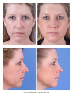 Revision Rhinoplasty: Breathing difficulty