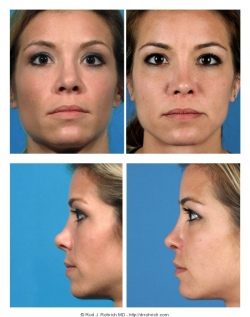 Revision Rhinoplasty: Nasal Tip