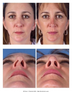 Revision Rhinoplasty: Asymmetry in Columella and Nostrils
