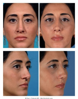 Revision Rhinoplasty: Nasal Length and Tip