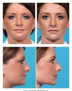 Revision Rhinoplasty: Nasal Tip, Dorsal Hump