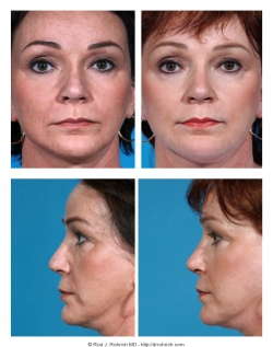 Revision Rhinoplasty: Breathing and Nasal Tip