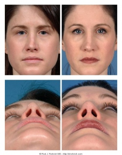 Revision Rhinoplasty: Breathing Issues, Dorsum, and Nasal Tip