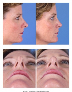Revision Rhinoplasty: Breathing issues, Dorsum and Nasal Tip