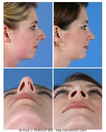 Rhinoplasty: Dorsal Hump, Tip, and Nasal Deviation Correction