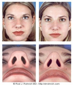 Rhinoplasty: Dorsal Hump and Nasal Tip