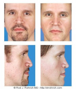 Rhinoplasty: Dorsal Contour and Nasal Tip