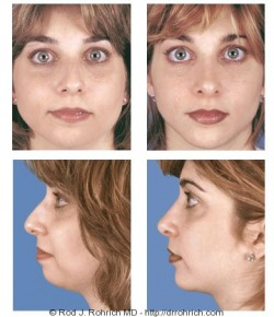 Rhinoplasty: Dorsal Hump and Nasal Tip, Genioplasty