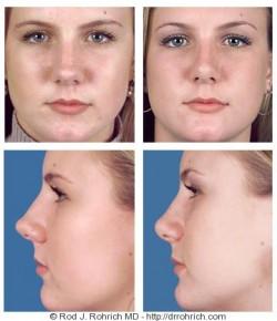 Rhinoplasty: Dorsal Width and Nasal Tip