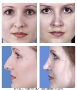Rhinoplasty: Dorsal Hump and Nasal Deviation Correction