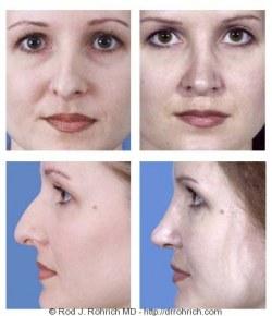 Rhinoplasty: Dorsal Hump and Nasal Deviation Correction