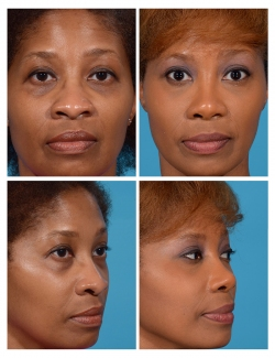 Rhinoplasty: Tip and Nostril Base