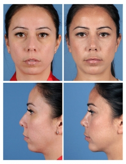 Rhinoplasty: Dorsal Hump, Refined Tip, Breathing Difficulty