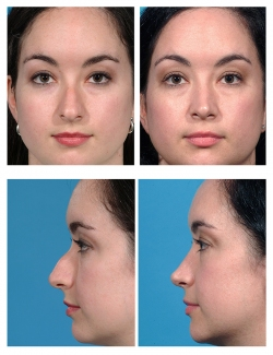 Rhinoplasty: Dorsal Hump, Asymmetry, Breathing Difficulty