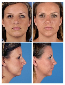 Rhinoplasty: Refined Tip, Breathing Difficulty