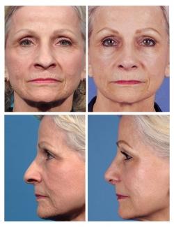 Rhinoplasty: Aging Nose, Tip, Dorsum