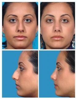 Rhinoplasty: Dorsal Hump, Nasal tip