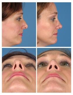 Rhinoplasty: Dorsal Asymmetry, Dorsum, Dorsal Hump, Tip