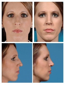 Rhinoplasty: Dorsal Hump, Tip Refinement