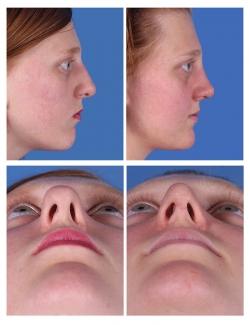 Rhinoplasty: Nasal Tip Refinement
