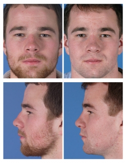 Male Rhinoplasty: Bulbous Tip, Dorsal Hump, Breathing Difficulty