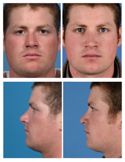 Male Rhinoplasty: Deviated Septum, Breathing Difficulty