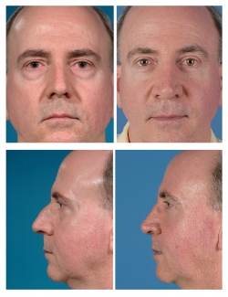 Male Rhinoplasty and Upper and Lower Blepharoplasty