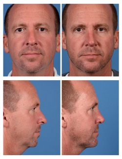 Male Rhinoplasty, Upper Blepharoplasty, and Chin Implant