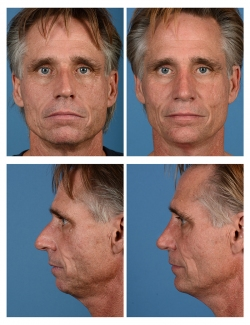Male Rhinoplasty and Chin Implant