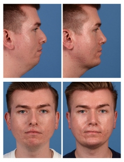 Male Rhinoplasty, Otoplasty, and Chin Implant