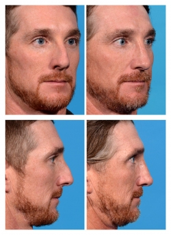 Male Rhinoplasty: Dorsal Hump, Airway Obstruction