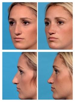 Rhinoplasty: Septal Reconstruction