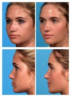 Rhinoplasty: Dorsal Hump, Nasal Deviation, Tip