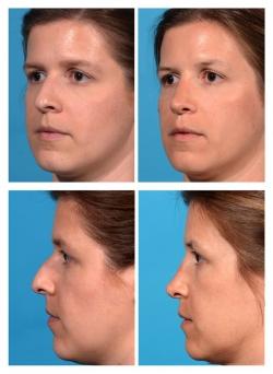 Rhinoplasty: Dorsal Hump, Nasal Deviation