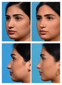 Rhinoplasty: Deviated Nose, Bulbous Tip