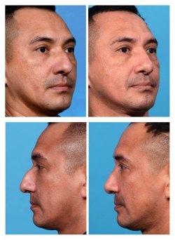 Male Rhinoplasty: Dorsal Hump, Bulbous Tip, Airway Obstruction
