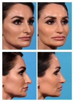 Rhinoplasty: Nasal Deviation, Dropping Tip