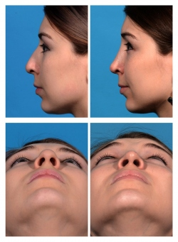 Rhinoplasty: Dorsal Hump and Asymetry with Bulbous Tip