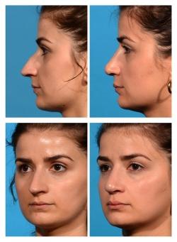 Rhinoplasty: Dorsal Hump, Droopy Tip