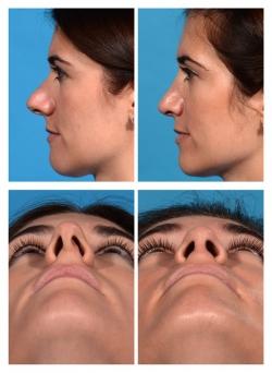 Rhinoplasty: Deviated, Upturned Nose
