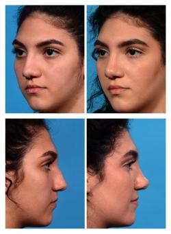 Rhinoplasty: Wide Nose, Dorsal Hump, Bulbous Tip, Alar Flaraing