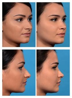 Rhinoplasty: Nasal Deviation, Pointy Tip